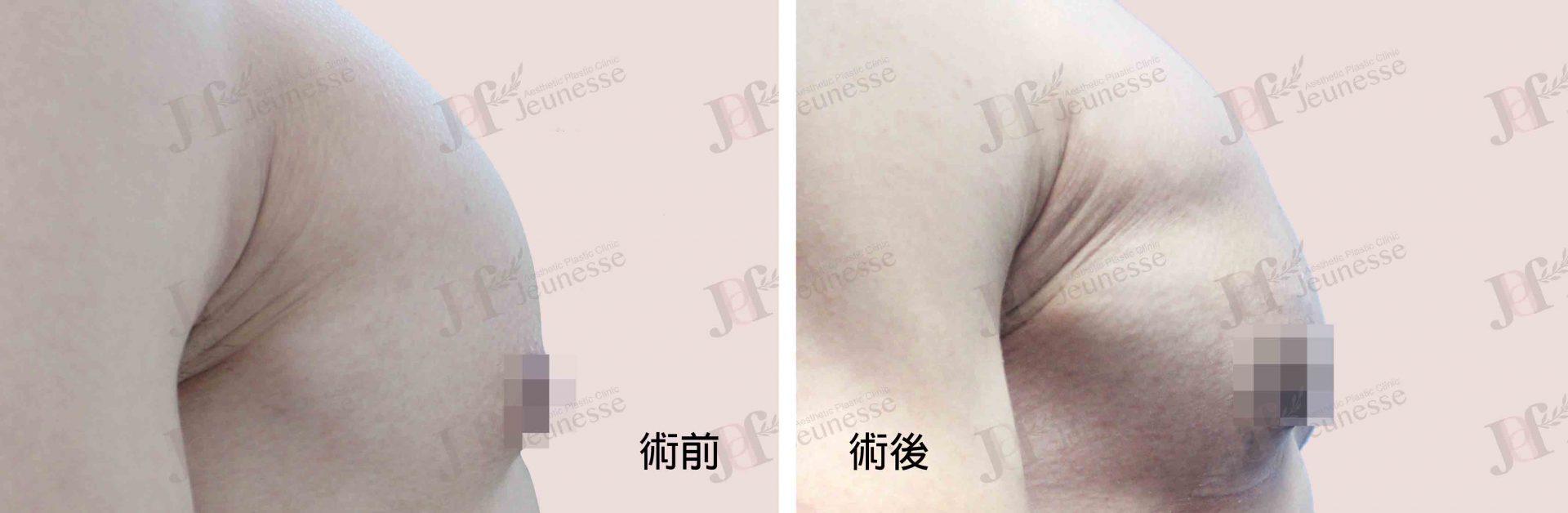 女乳症case1 側面-浮水印