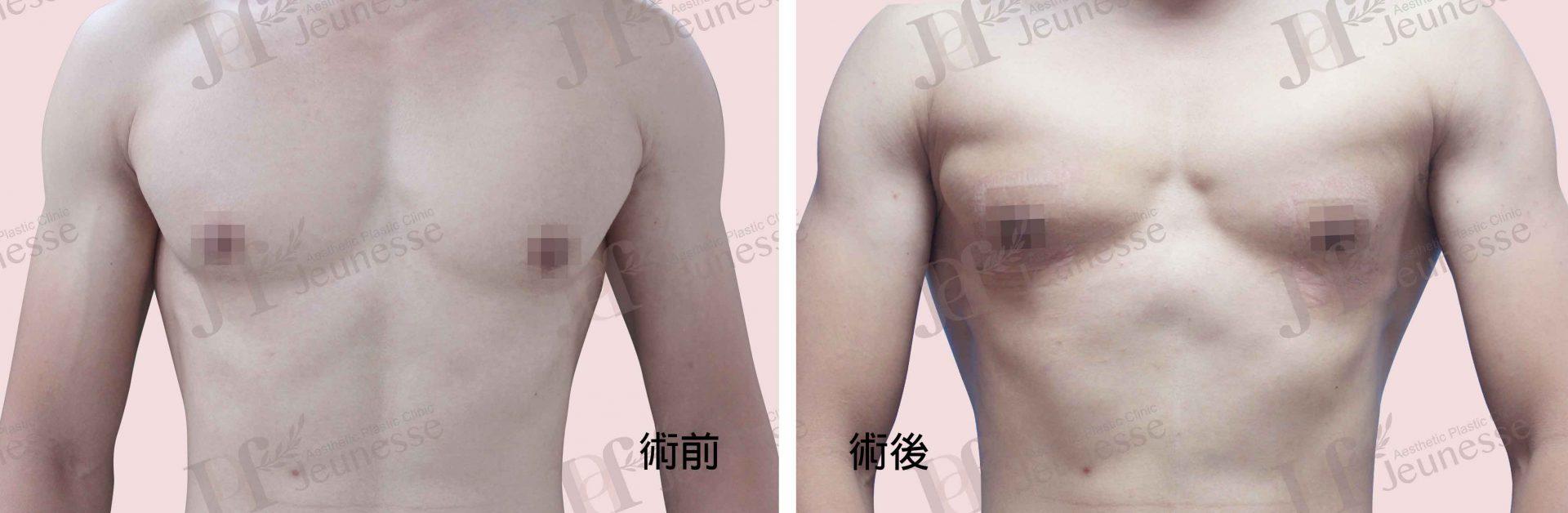 女乳症case1 正面-浮水印