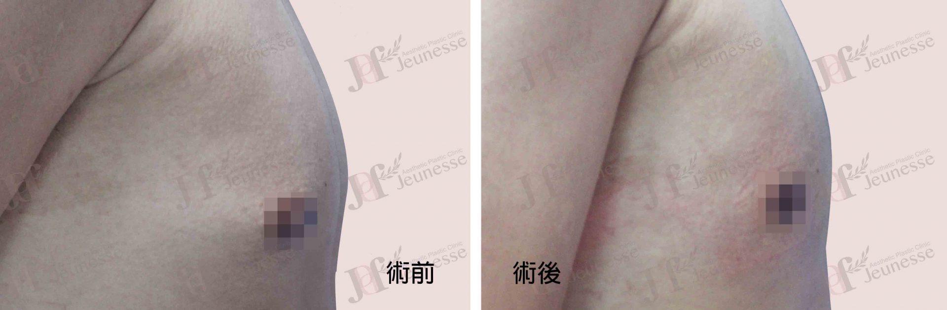 女乳症case2 側面-浮水印