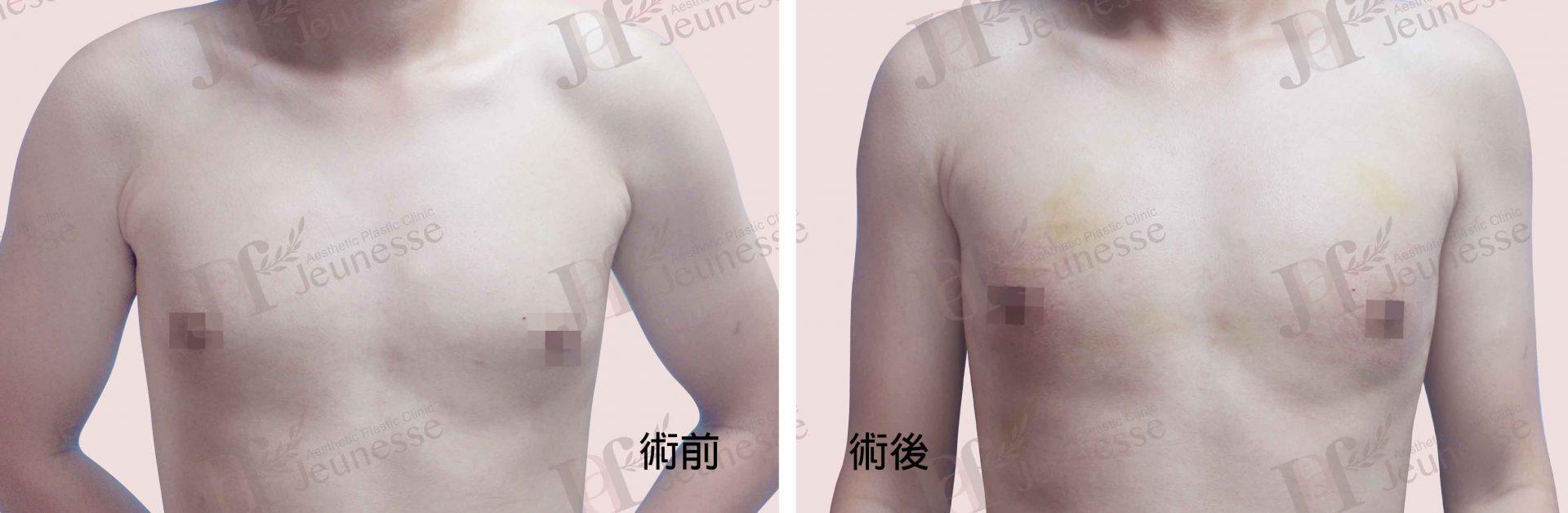 女乳症case2 正面-浮水印