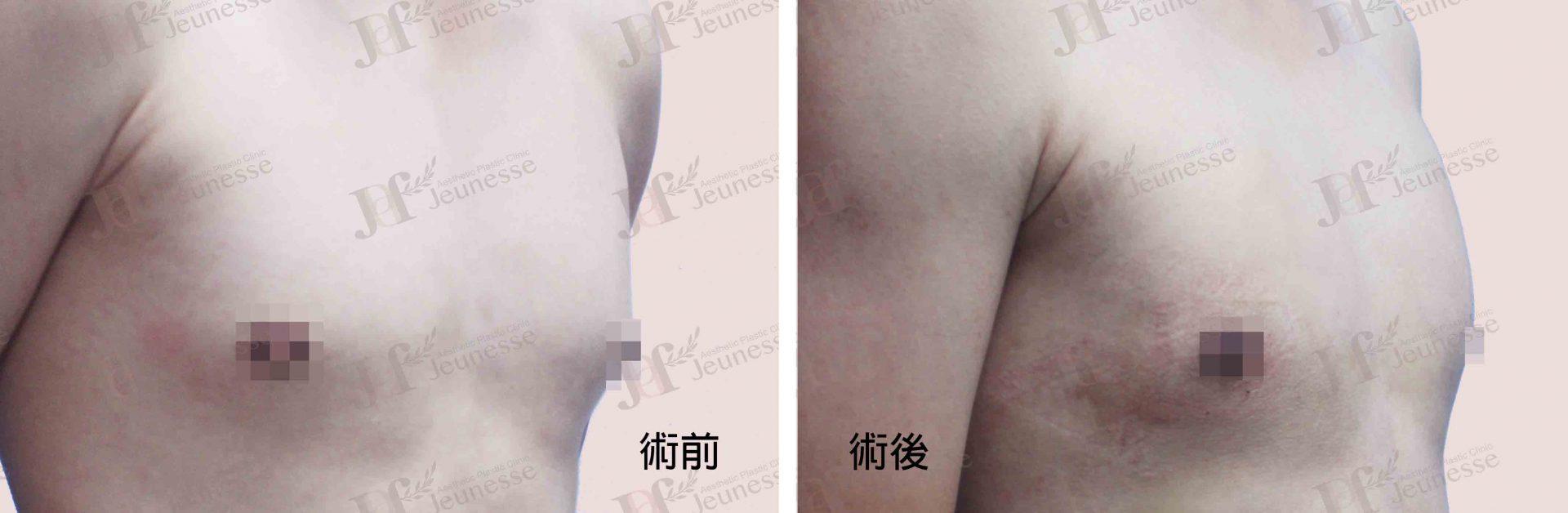 女乳症case2 45度-浮水印