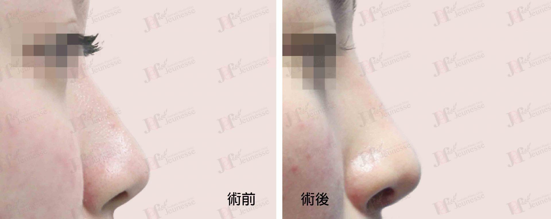 隆鼻 case1 側面-浮水印