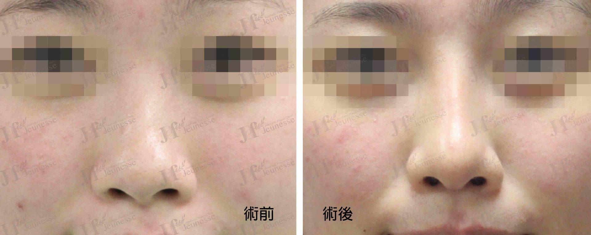 隆鼻 case1 正面-浮水印