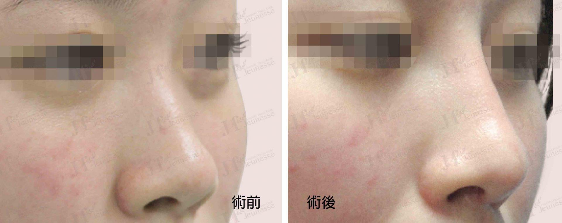 隆鼻 case1 45度-浮水印