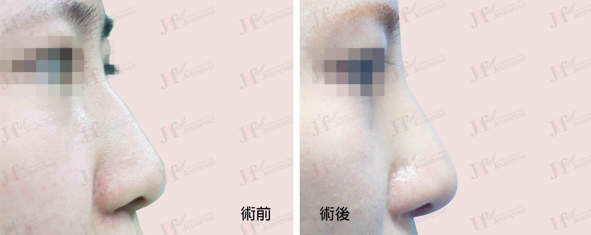 隆鼻 case2 側面-浮水印