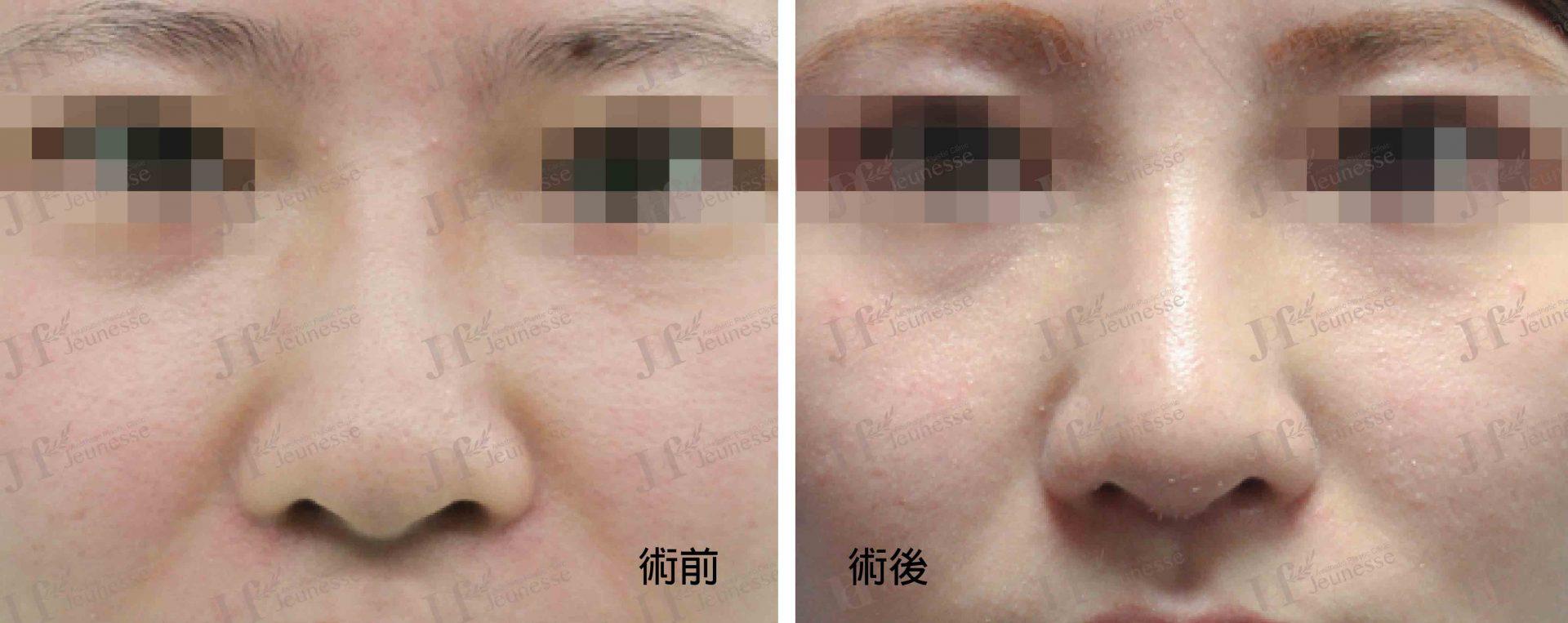 隆鼻 case2 正面-浮水印
