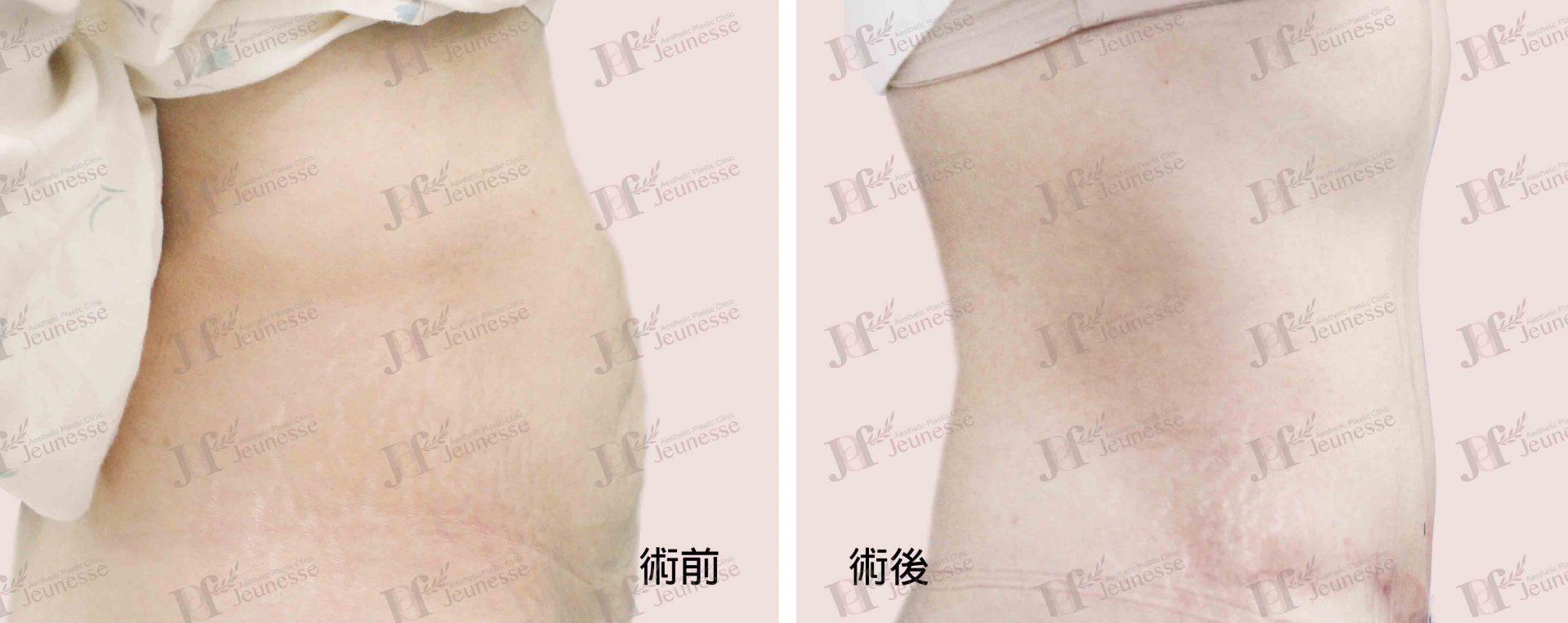 Abdominoplasty腹部成形術及抽脂手術 case 1 側面-浮水印