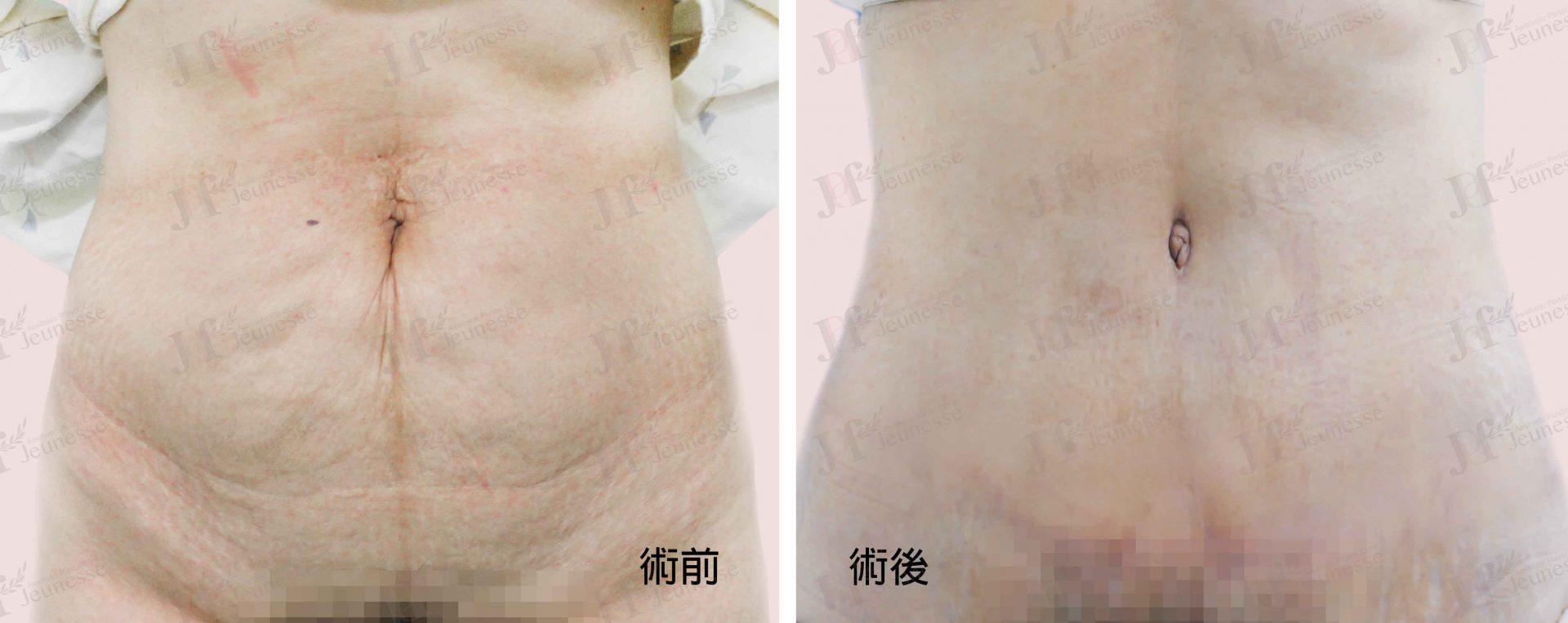Abdominoplasty腹部成形術及抽脂手術 case 1 正面-浮水印