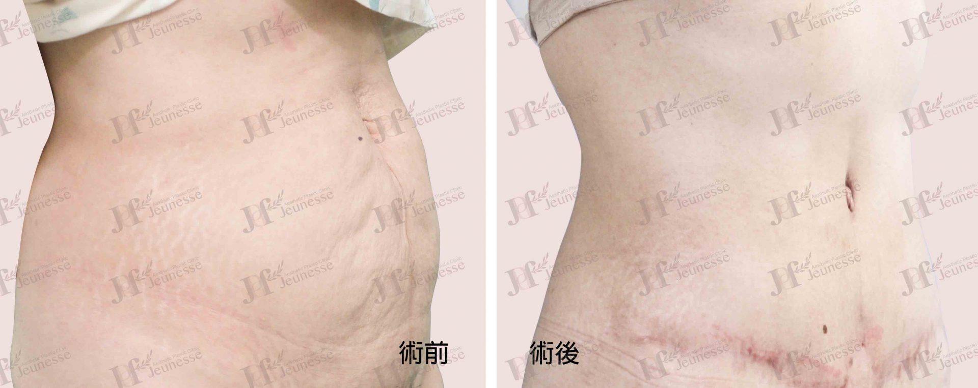 Abdominoplasty腹部成形術及抽脂手術 case 1 45度-浮水印