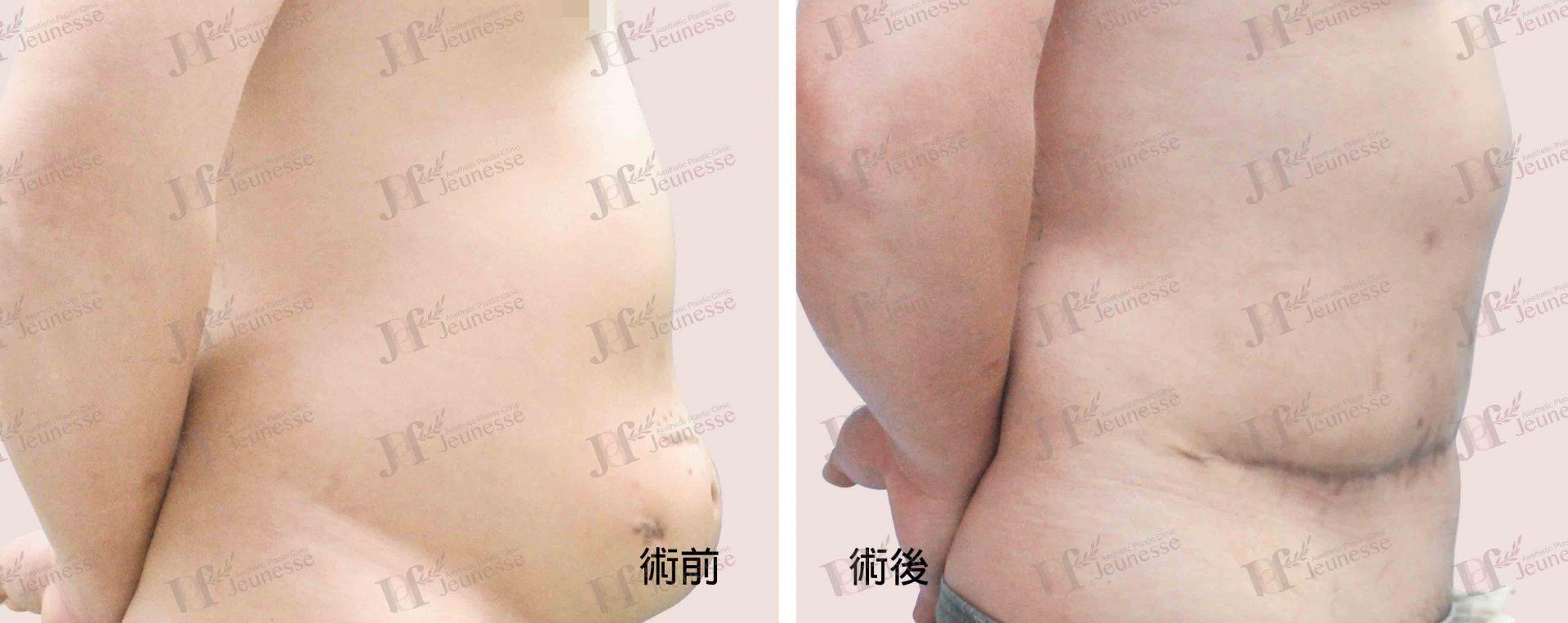 Abdominoplasty腹部成形術及抽脂手術 case 2 側面-浮水印