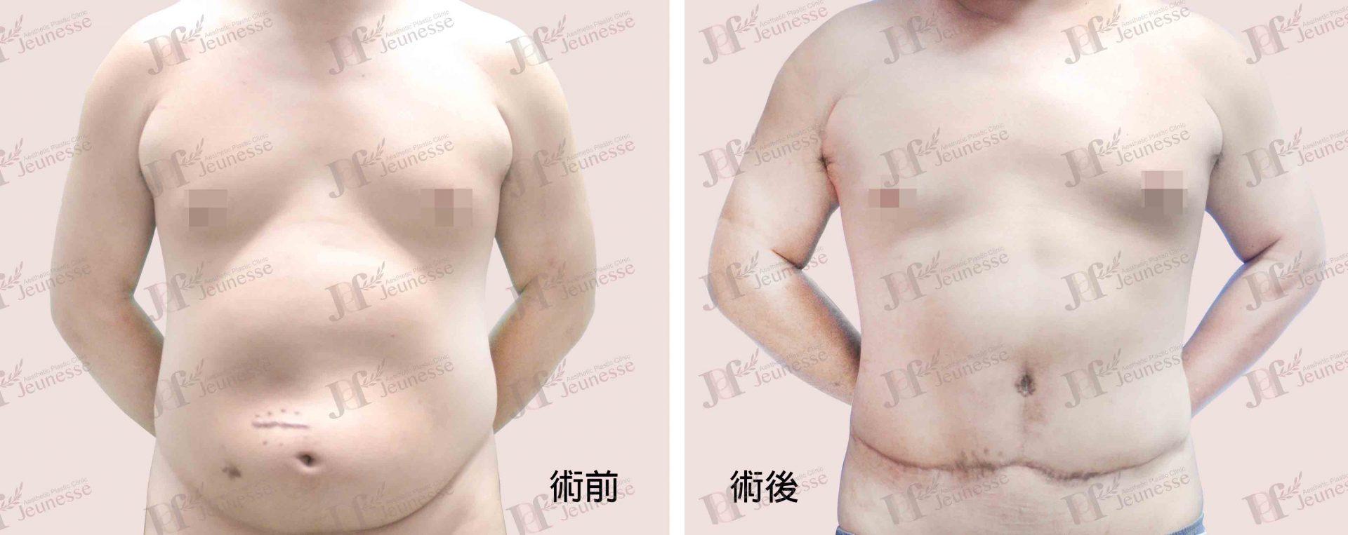 Abdominoplasty腹部成形術及抽脂手術 case 2 正面-浮水印