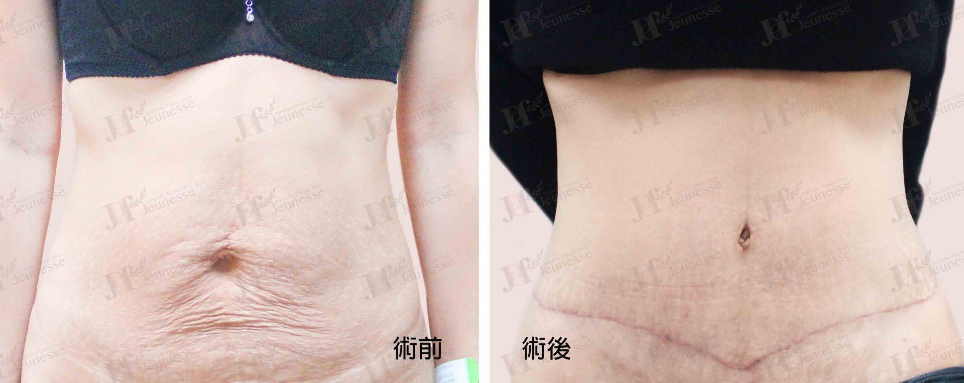 Abdominoplasty腹部成形術及抽脂手術 case 5 正面-浮水印