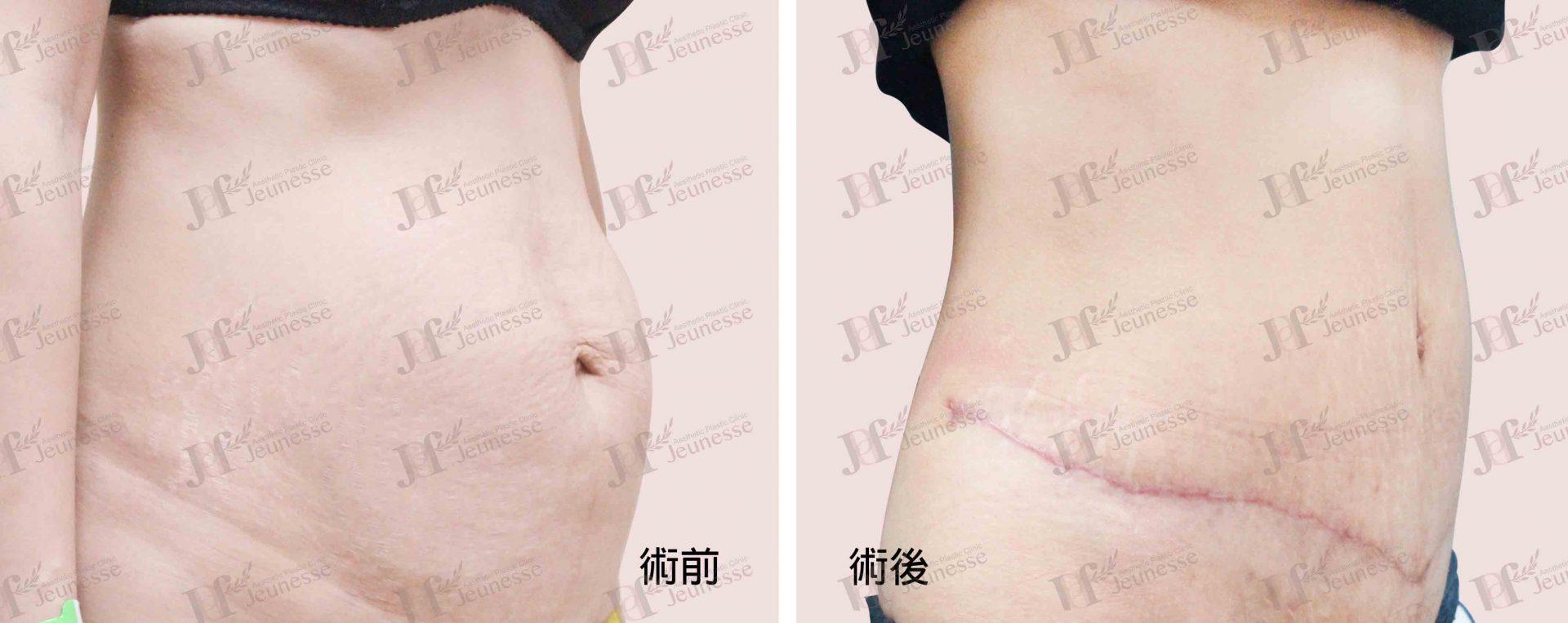 Abdominoplasty腹部成形術及抽脂手術 case 5 45度-浮水印