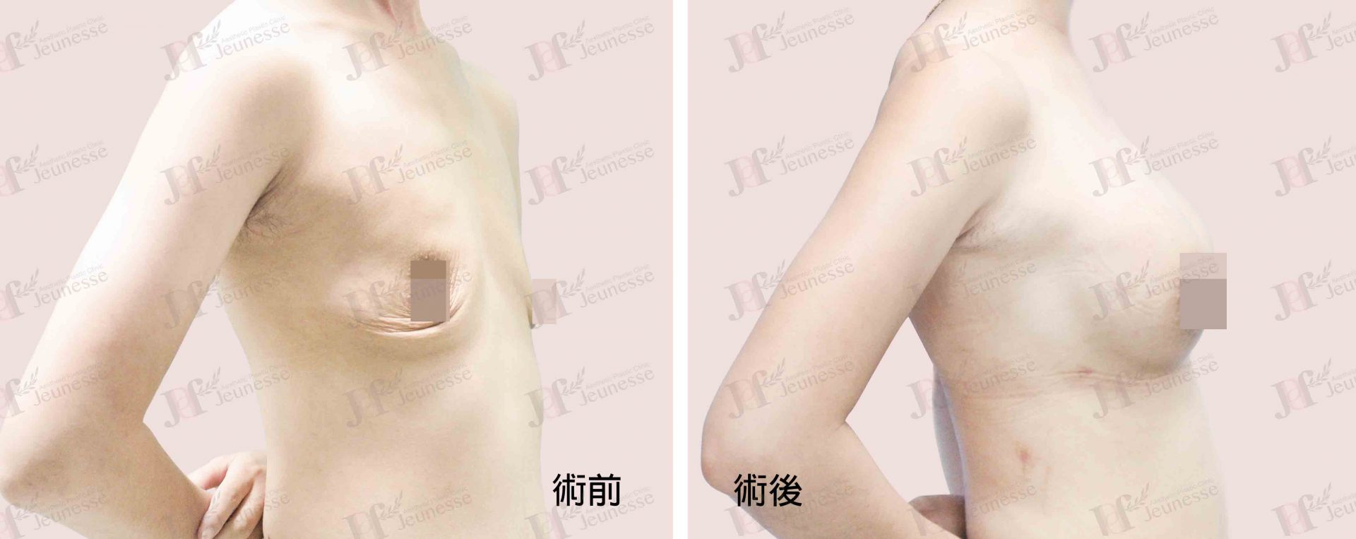 Breast Augmentation- Silicone implants -case2 側面-浮水印