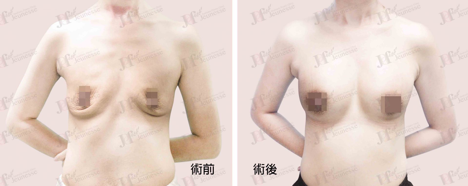 Breast Augmentation- Silicone implants -case2 正面-浮水印