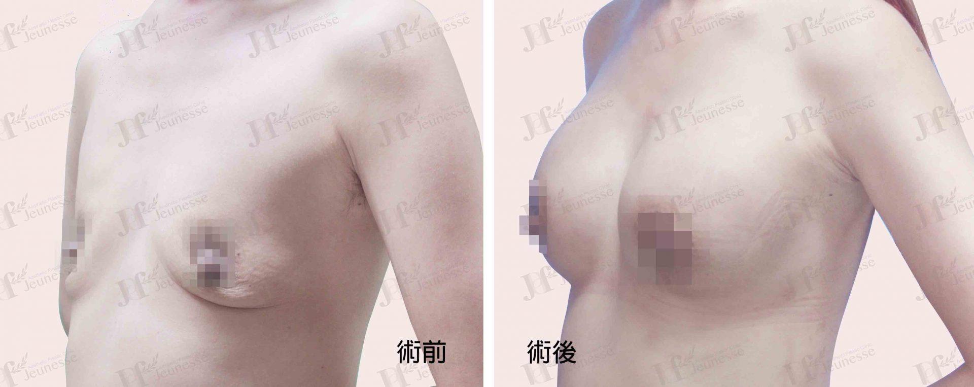 Breast Augmentation- Silicone implants -case2 45度-浮水印