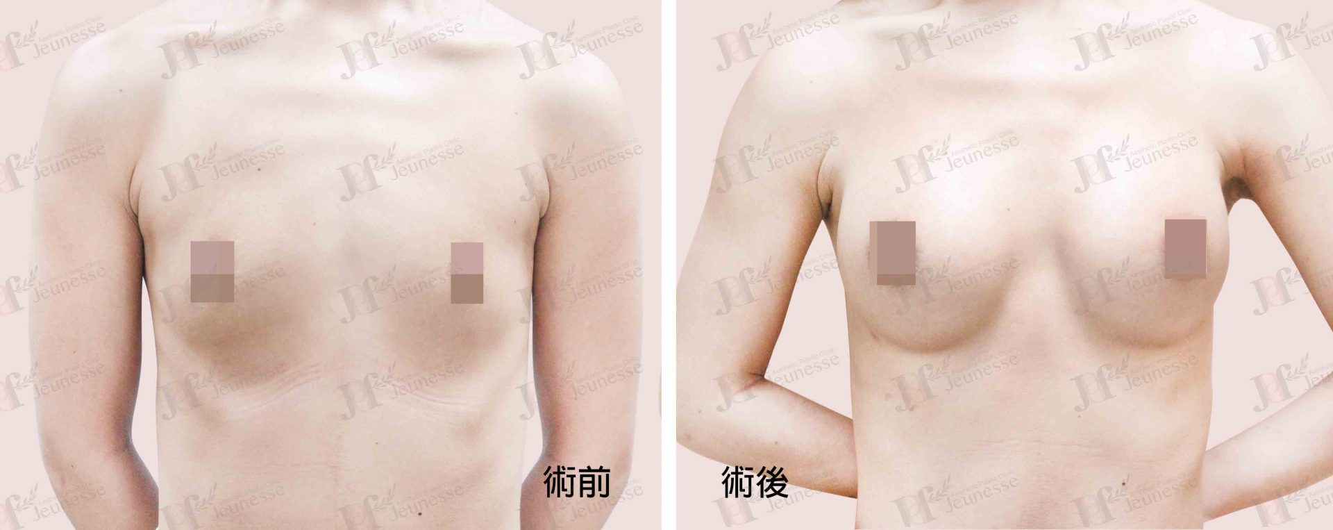 Breast Augmentation- Silicone implants -case3 正面-浮水印