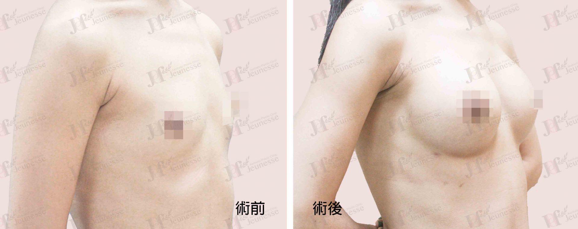 Breast Augmentation- Silicone implants -case3 45度-浮水印