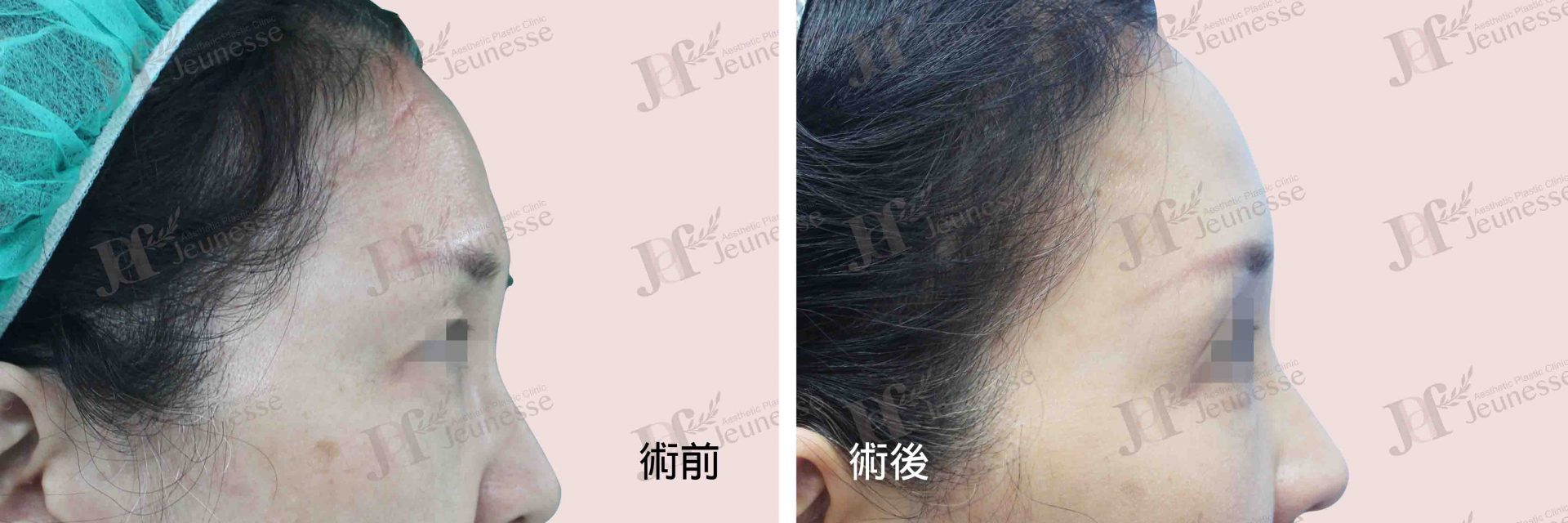 Forehead lifting 側面-浮水印