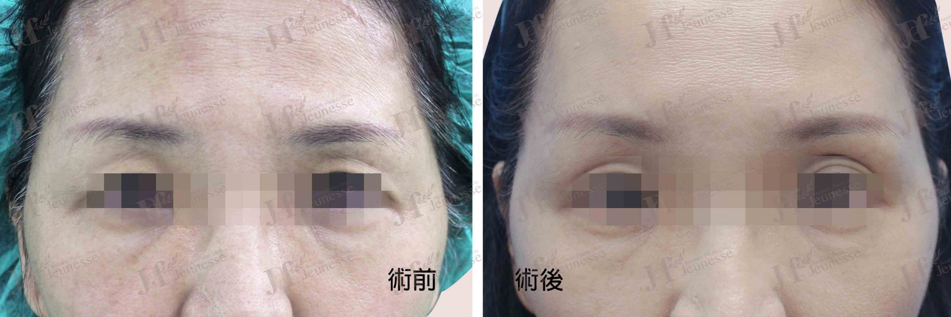Forehead lifting 正面-浮水印