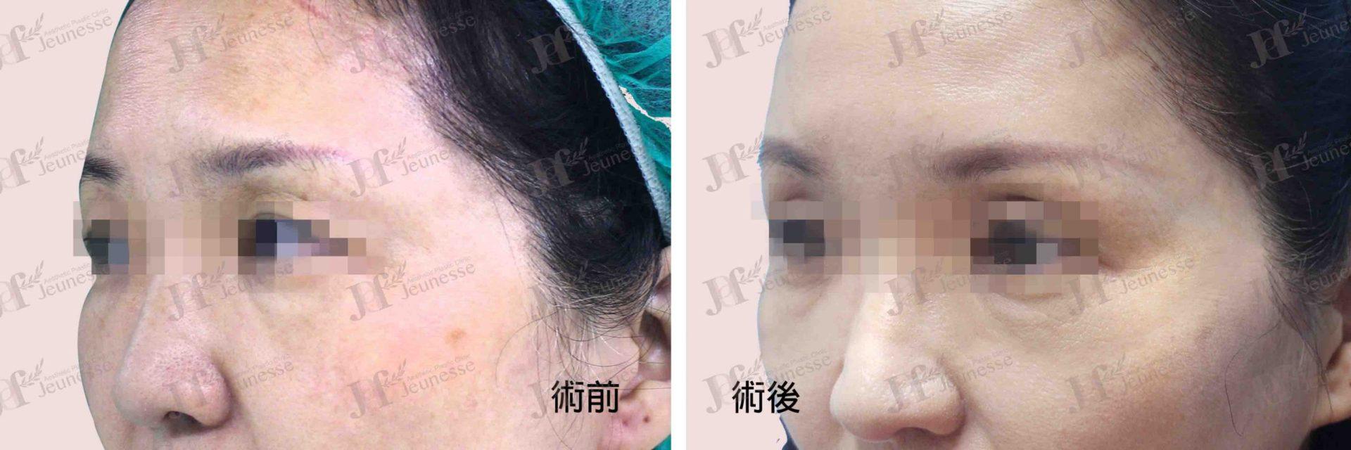 Forehead lifting 45度-浮水印