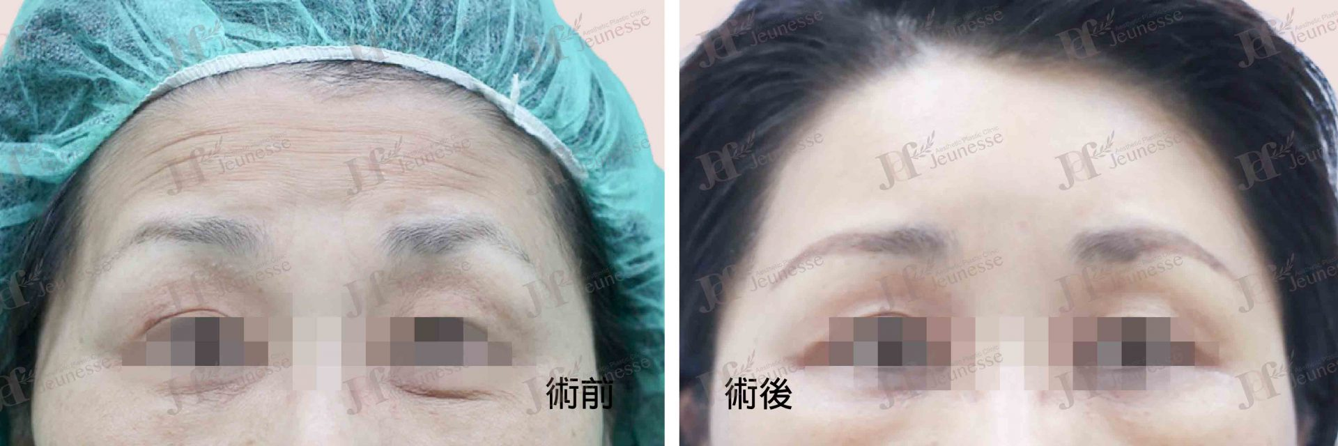 Forehead lifting case 2 正面-浮水印