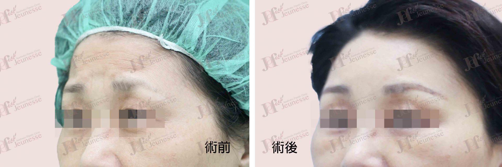Forehead lifting case 2 45度左臉術前-浮水印