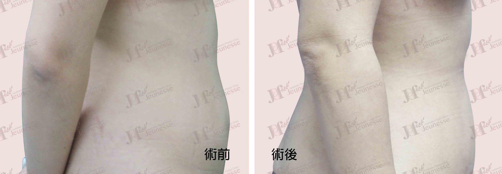 Liposuction- Abdomen case2 側面-浮水印