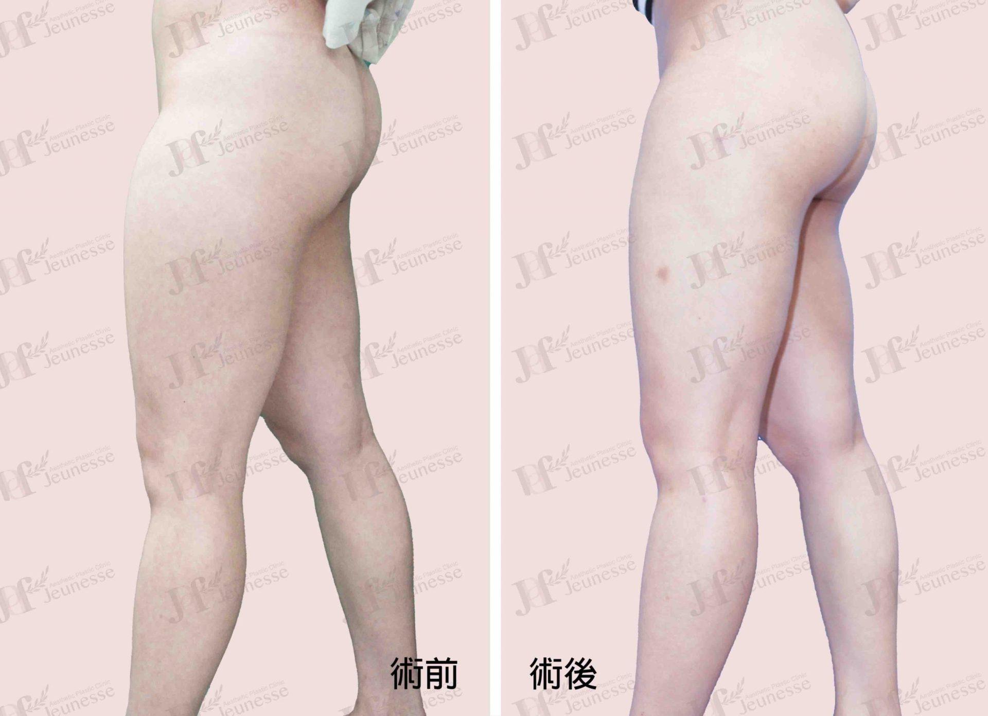 Liposuction- Thighs case2 側面-浮水印