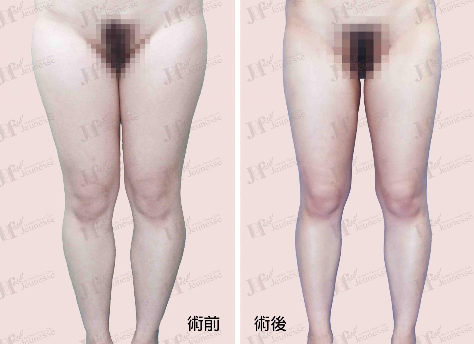 Liposuction- Thighs case2 正面-浮水印