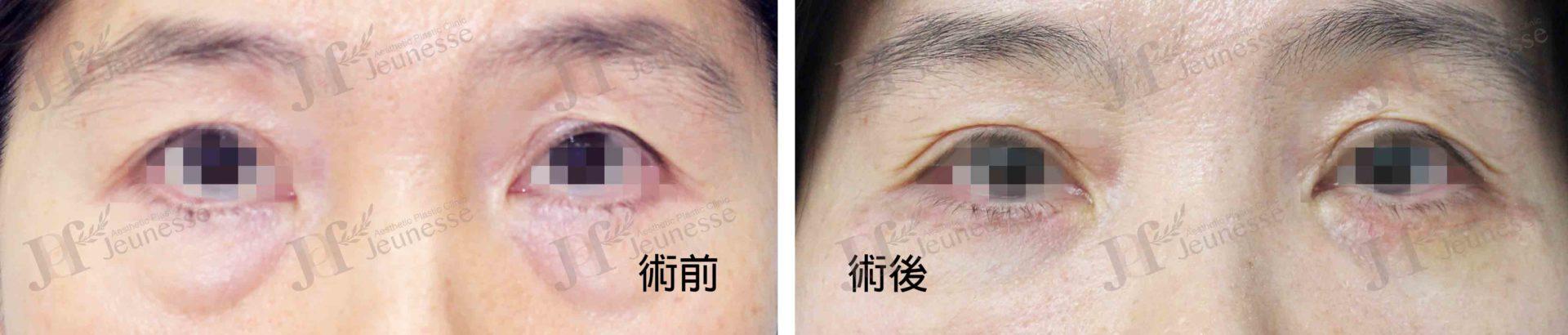 Lower blepharoplasty case 1 正面-浮水印