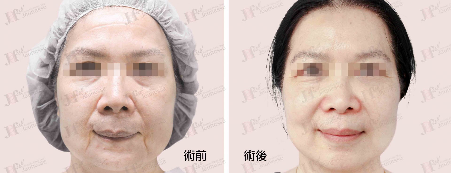 Midface lifting case 1 正面 -浮水印