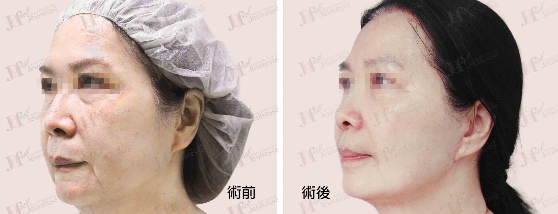 Midface lifting case 1 45度 -浮水印