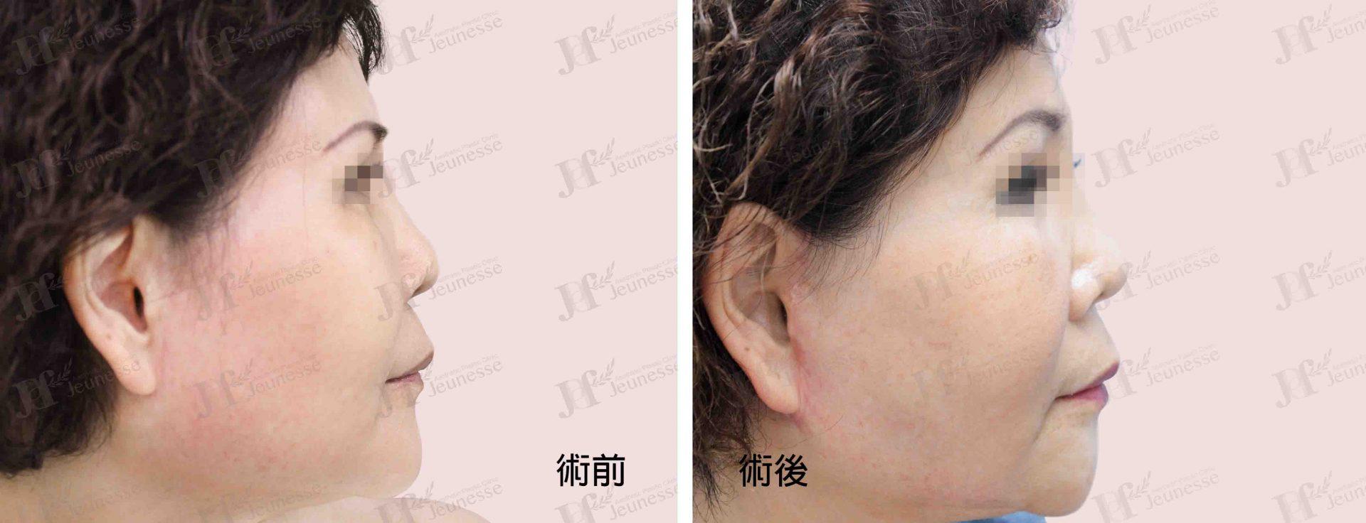 Midface lifting case 2 側面-浮水印