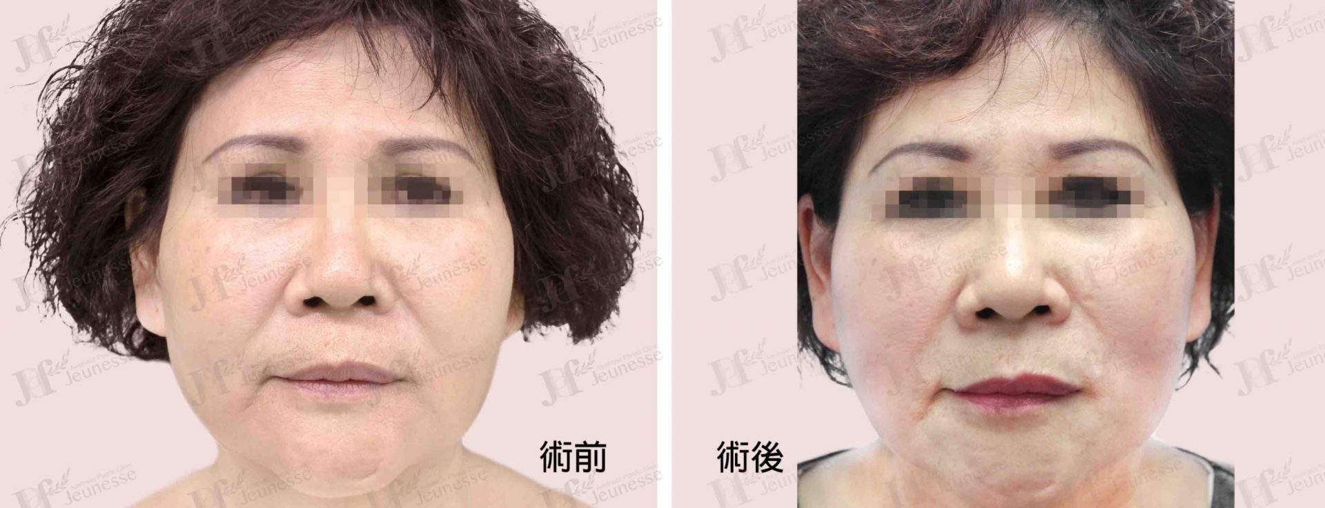 Midface lifting case 2 正面-浮水印