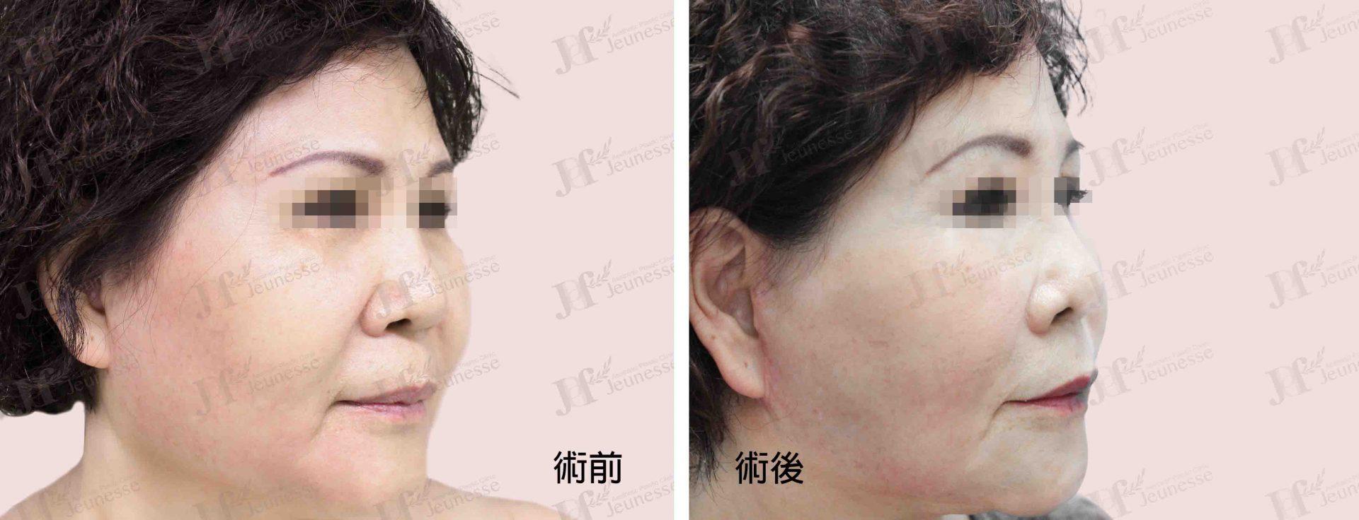 Midface lifting case 2 45度-浮水印