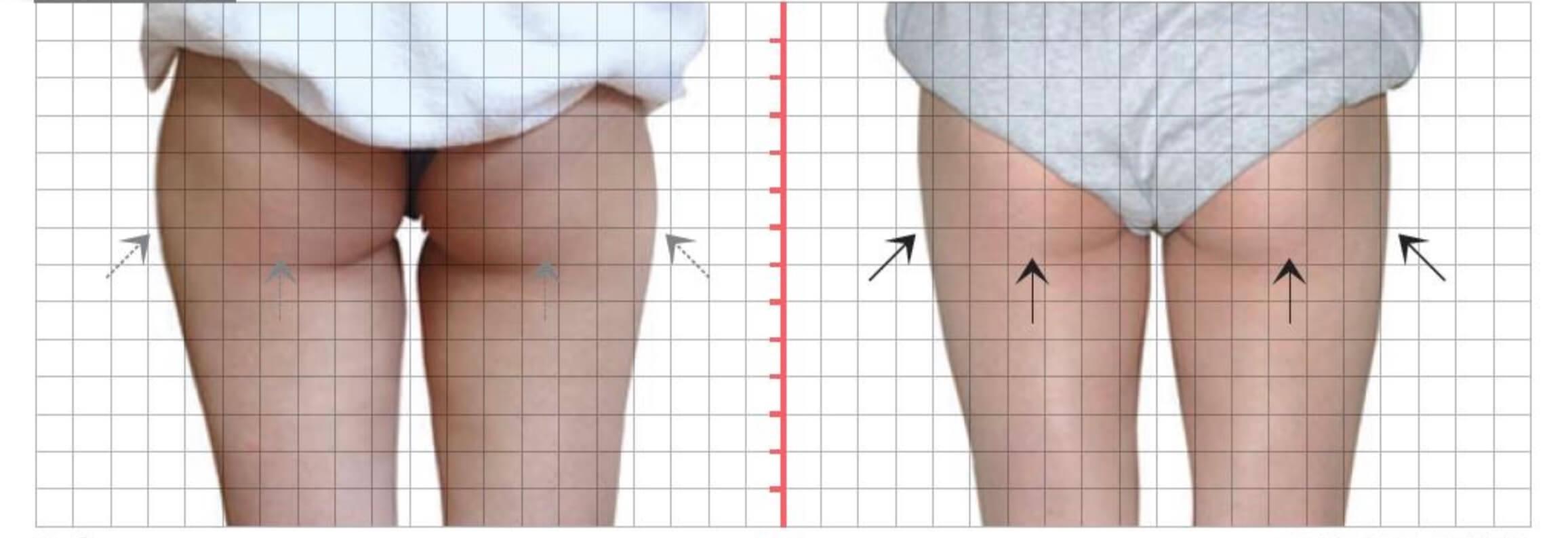 臀下線及雙側大腿外側,酷S冷凍減脂一次治療
