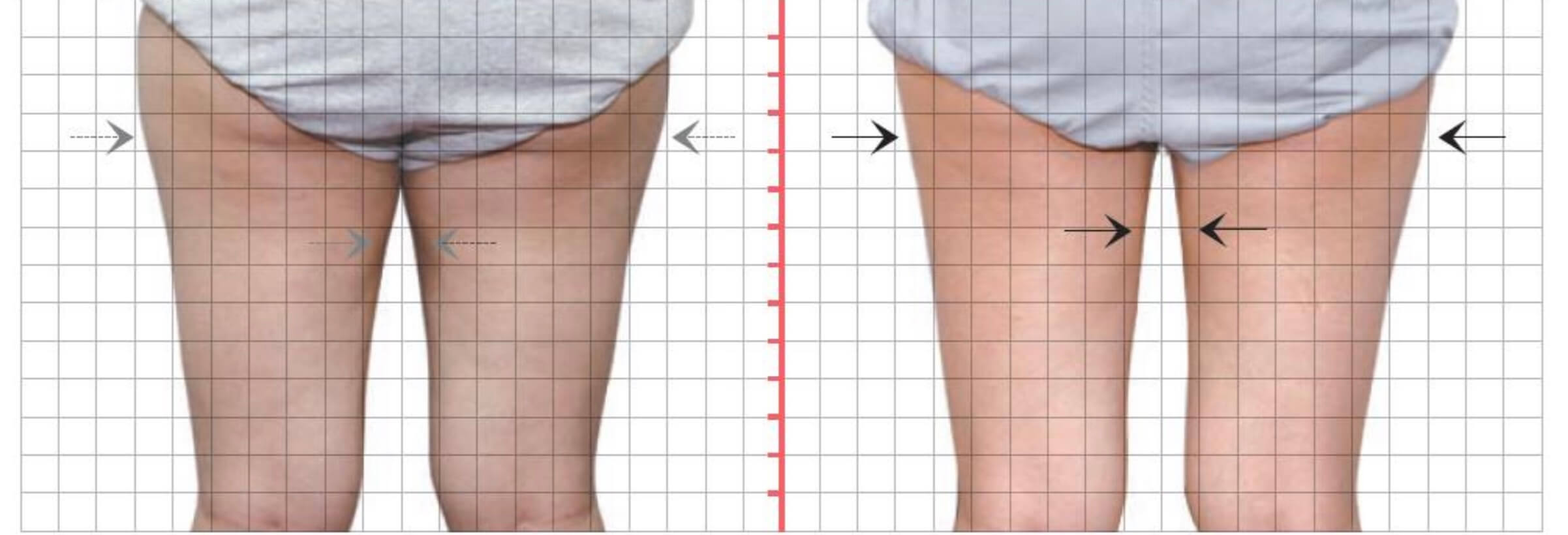 臀下線及雙側大腿外側,酷S冷凍減脂二次治療