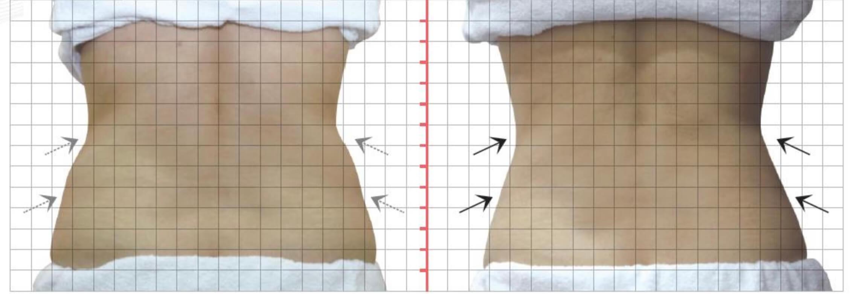 背部雙側上下腰部,酷S冷凍減脂二次治療