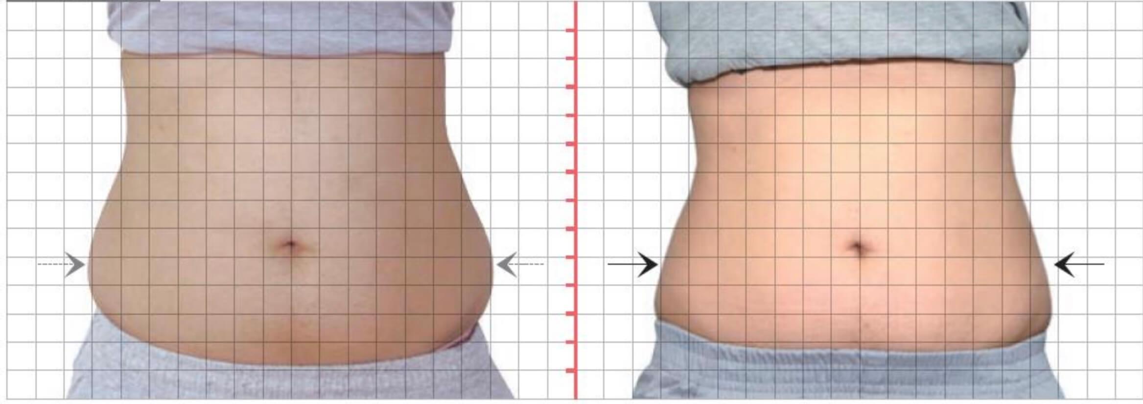 雙側腰部,酷S冷凍減脂三次治療