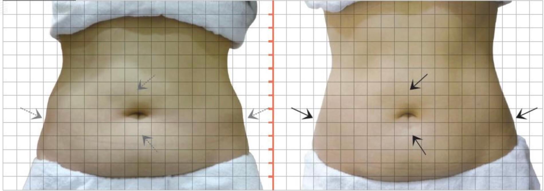 上下腹部及雙側腰部,酷S冷凍減脂一次治療