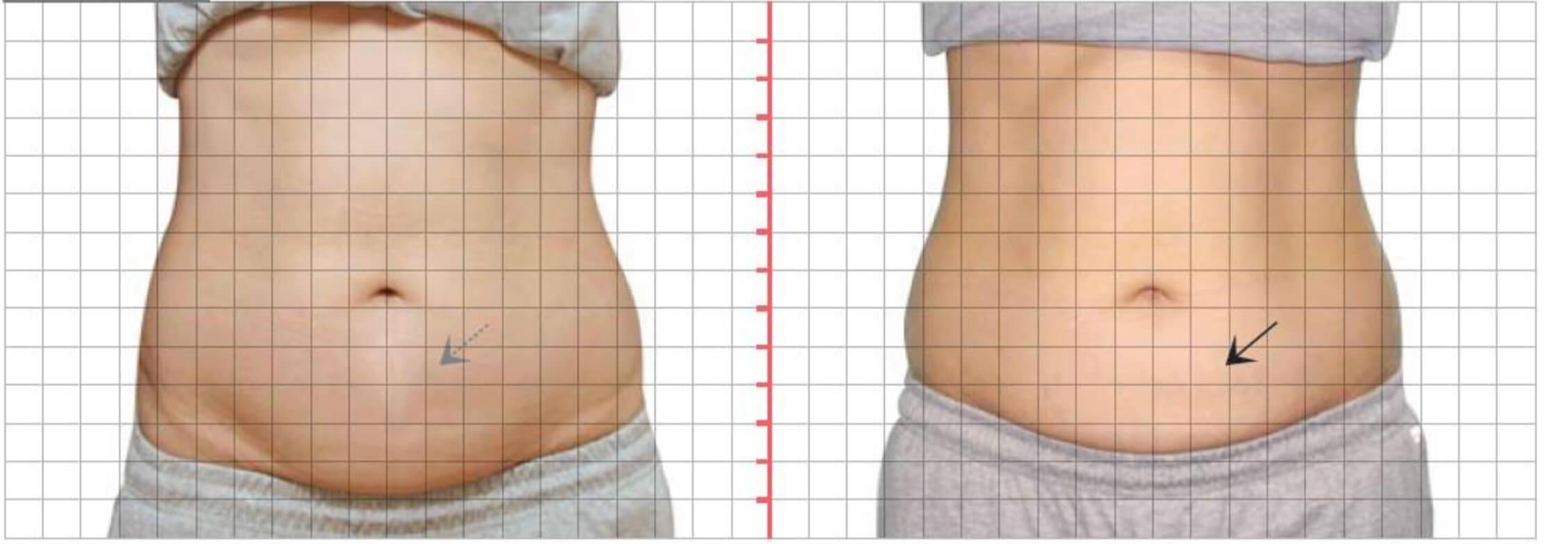 下腹部,酷S冷凍減脂二次治療