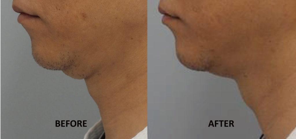 雙下巴;Q+音波拉提2次治療