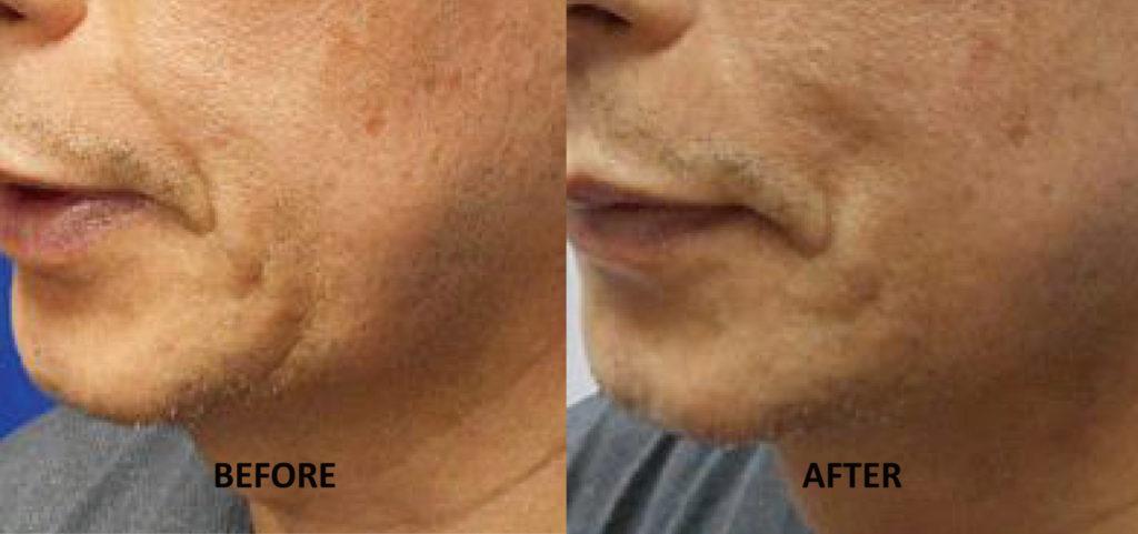 法令紋;嘴邊肉;Q+音波拉提1次治療