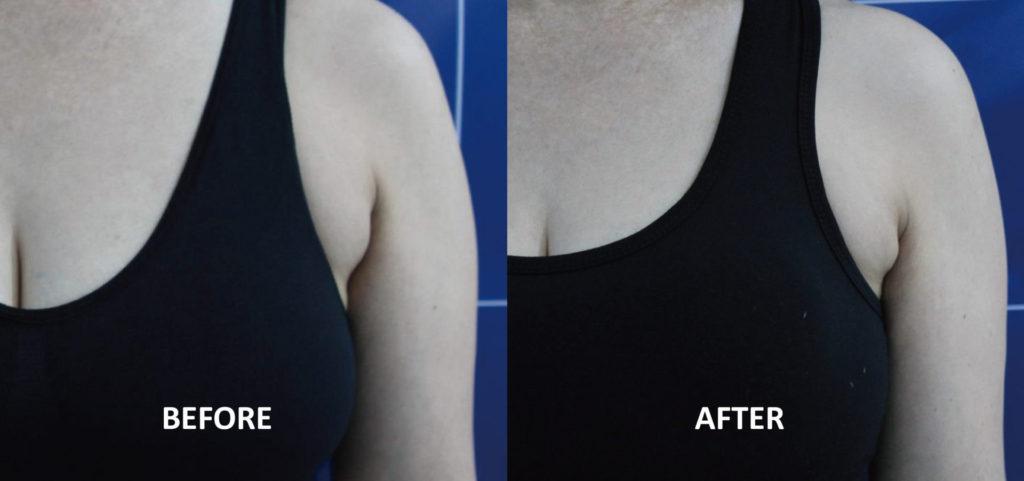 副乳;Q+音波拉提5次治療