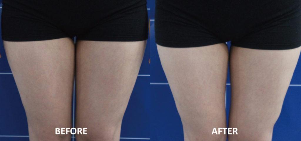 大腿內側;Q+音波拉提4次治療