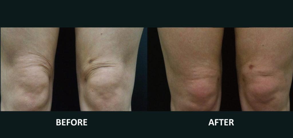 膝蓋附近;Q+音波拉提3次治療