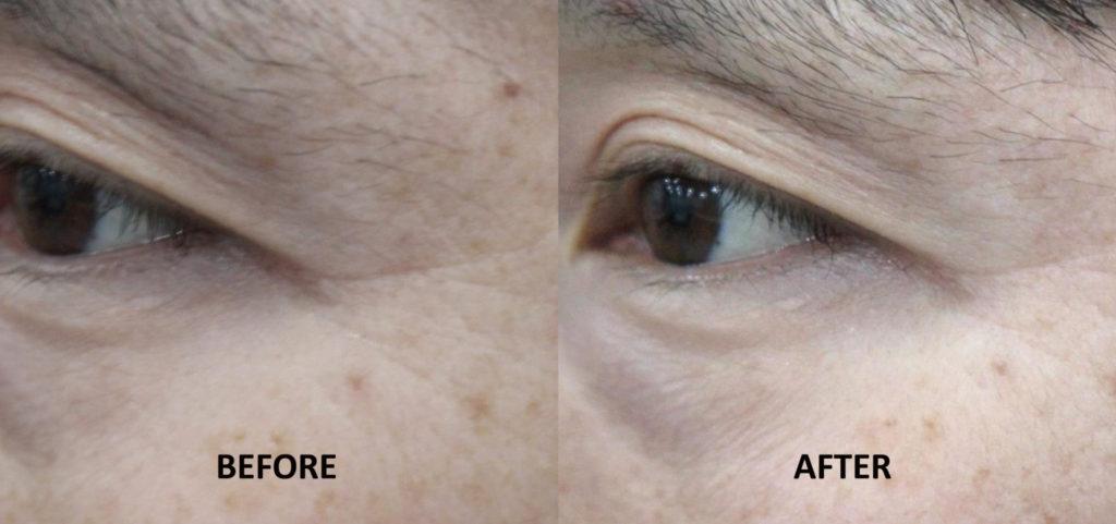 眼周附近;Q+音波拉提1次治療